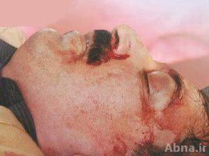 شہید ڈاکٹر شاہنواز علی سپرد خاک، ڈاکٹروں کی ہڑتال اور احتجاج