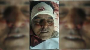 Karachi: 4 martyrdom in 24 hours, Shiite Doctor shot dead