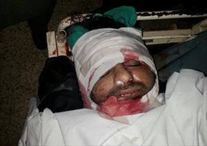 علامہ ناصر عباس کا قتل، گورنر ہائوس کے باہر دھرنے کا اعلان