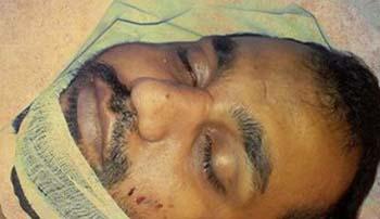 Adeel Abbas was shot and martyred in Liaqatabad,Karachi