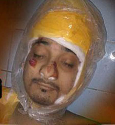 کراچی: لیاقت آباد کا زخمی نوجوان دم توڑ گیا۔